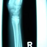 Das Kniegelenk